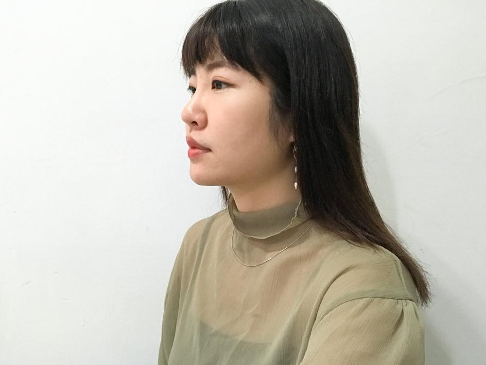 嘴邊肉拉提,音波拉皮效果,嘴邊肉拉提醫美,音波拉皮會痛嗎,音波拉皮會腫多久