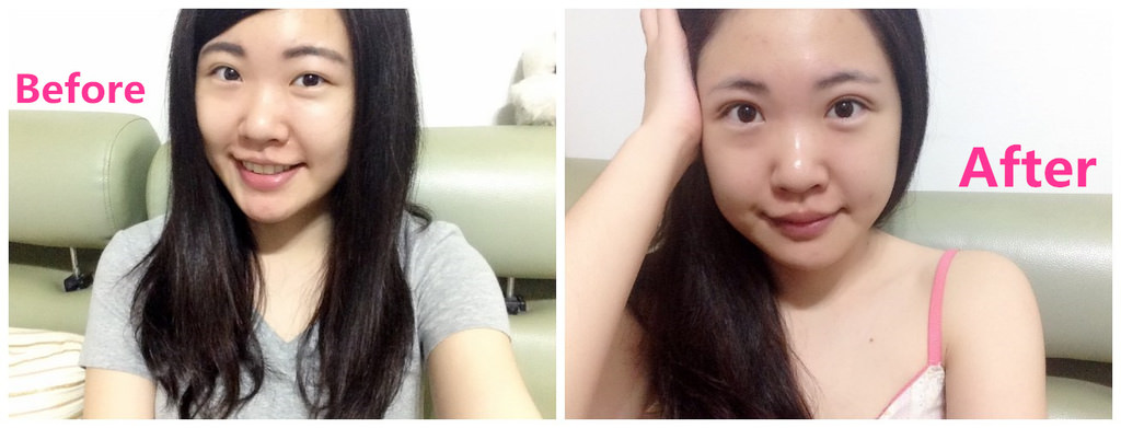 縫雙眼皮分享▌CP值超高的「金台診所」:泡泡眼縫雙眼皮一個月照片心得分享/第二次縫雙眼皮超認真完整記錄!(圖多)